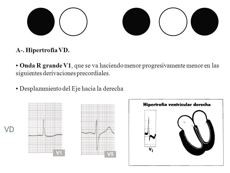 A-. Hipertrofia VD. Onda R grande V1, que se va haciendo menor progresivamente menor en las siguientes derivaciones precordiales. Desplazamiento del E