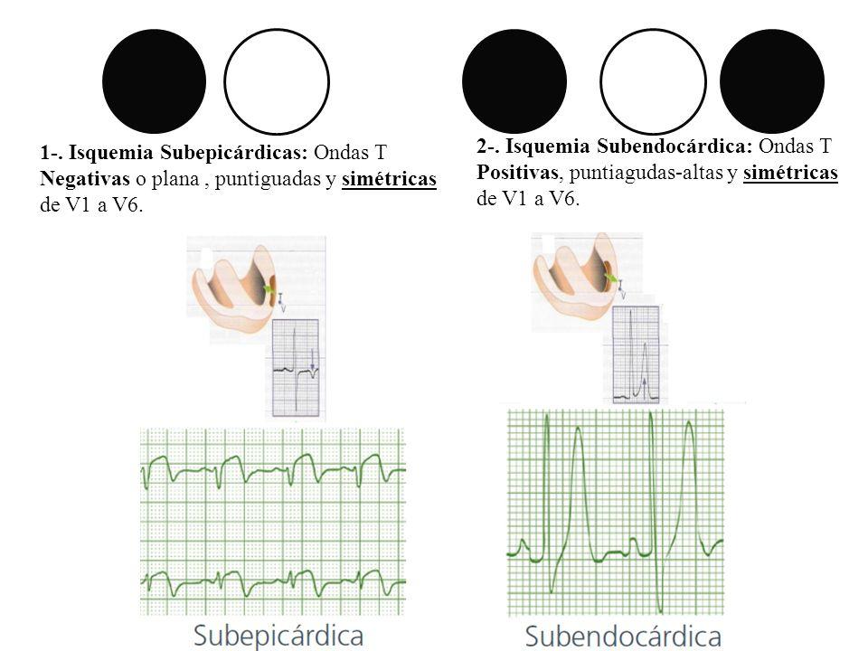 1-. Isquemia Subepicárdicas: Ondas T Negativas o plana, puntiguadas y simétricas de V1 a V6. 2-. Isquemia Subendocárdica: Ondas T Positivas, puntiagud