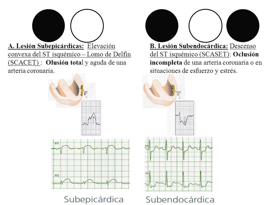 A. Lesión Subepicárdicas: Elevación convexa del ST isquémico – Lomo de Delfín (SCACET) : Olusión total y aguda de una arteria coronaria. B. Lesión Sub