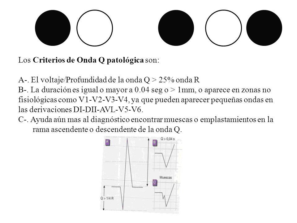 Los Criterios de Onda Q patológica son: A-. El voltaje/Profundidad de la onda Q > 25% onda R B-. La duración es igual o mayor a 0.04 seg o > 1mm, o ap