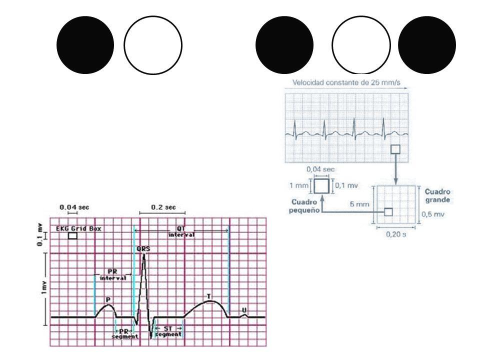 B-. Plano Frontal (Rotación del Eje). V2 Negativo
