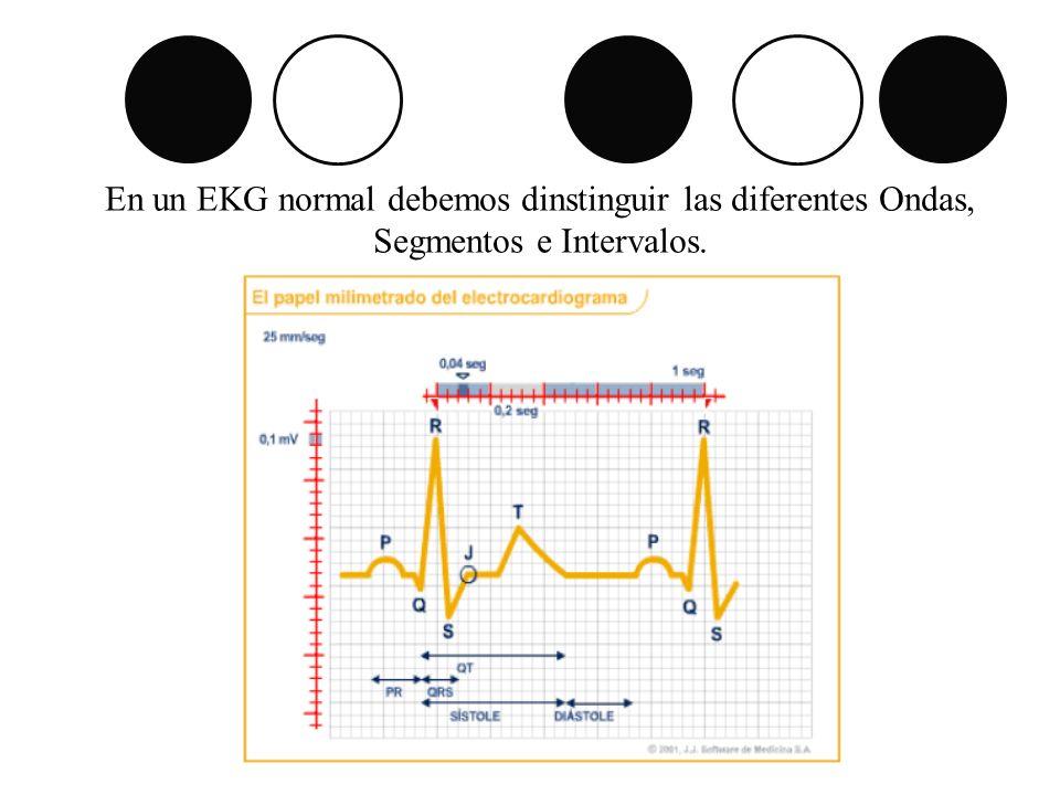 Ondas – Complejo QRS.Onda P: Redondeada, de una duración <= 0,10 seg y voltaje <= 0,25mv.