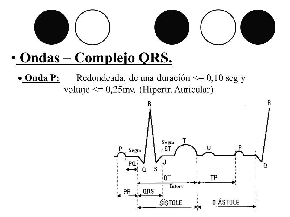 Ondas – Complejo QRS. Onda P: Redondeada, de una duración <= 0,10 seg y voltaje <= 0,25mv. (Hipertr. Auricular)