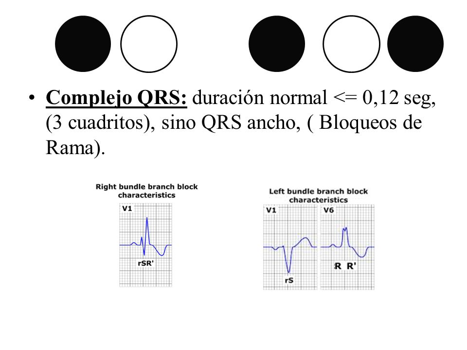 Complejo QRS: duración normal <= 0,12 seg, (3 cuadritos), sino QRS ancho, ( Bloqueos de Rama).
