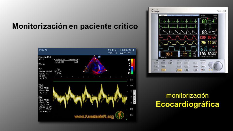 Medir GC 1-2 min tras maniobra Predicción de la respuesta a Volumen Maniobra de PLR Passive Leg Raising VE = VTS-VTD GC = VE x FC GC > 10% Buena respuesta a volumen