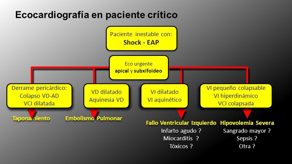 Ecocardiografía en paciente crítico Paciente inestable con: Shock - EAP Paciente inestable con: Shock - EAP Taponamiento Derrame pericárdico: Colapso