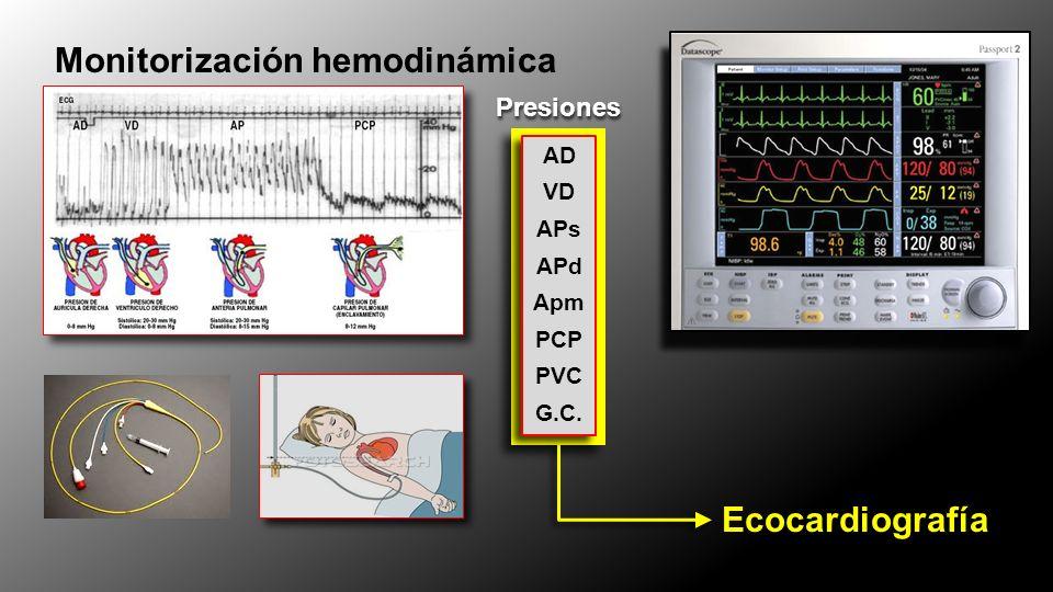 Ecocardiografía Monitorización hemodinámica AD VD APs APd Apm PCP PVC G.C. AD VD APs APd Apm PCP PVC G.C. Presiones