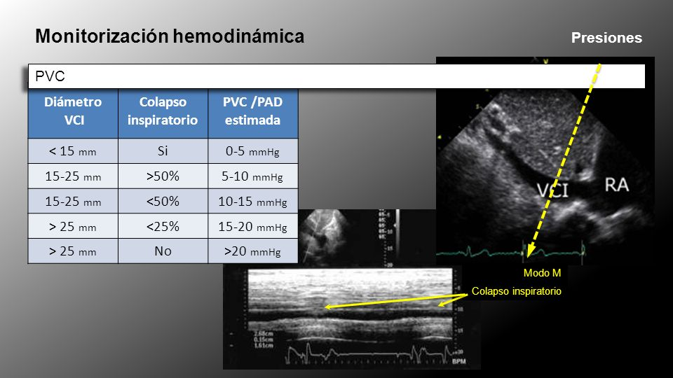 Diámetro VCI Colapso inspiratorio PVC /PAD estimada < 15 mm Si0-5 mmHg 15-25 mm >50%5-10 mmHg 15-25 mm <50%10-15 mmHg > 25 mm <25%15-20 mmHg > 25 mm No>20 mmHg Monitorización hemodinámica Presiones PVC Modo M Colapso inspiratorio