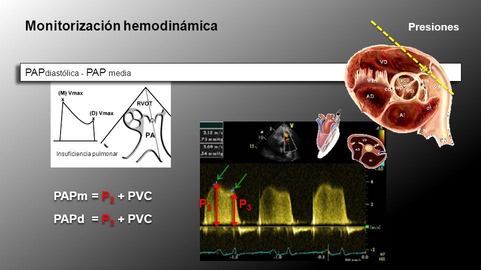 Insuficiencia pulmonar Monitorización hemodinámica Presiones PAP diastólica - PAP media PAPm = P 2 + PVC P2P2 P2P2 P3P3 P3P3 PAPd = P 3 + PVC = =