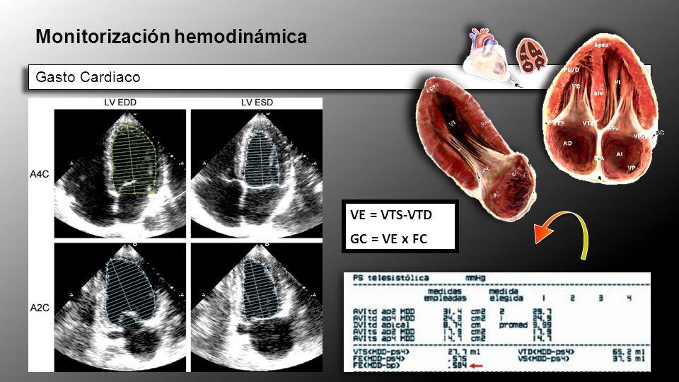 Ecocardiografía en paciente crítico Paciente inestable con: Shock - EAP Paciente inestable con: Shock - EAP Taponamiento Derrame pericárdico: Colapso VD-AD VCI dilatada Derrame pericárdico: Colapso VD-AD VCI dilatada Embolismo Pulmonar VD dilatado Aquinesia VD VD dilatado Aquinesia VD Fallo Ventricular Izquierdo Infarto agudo .