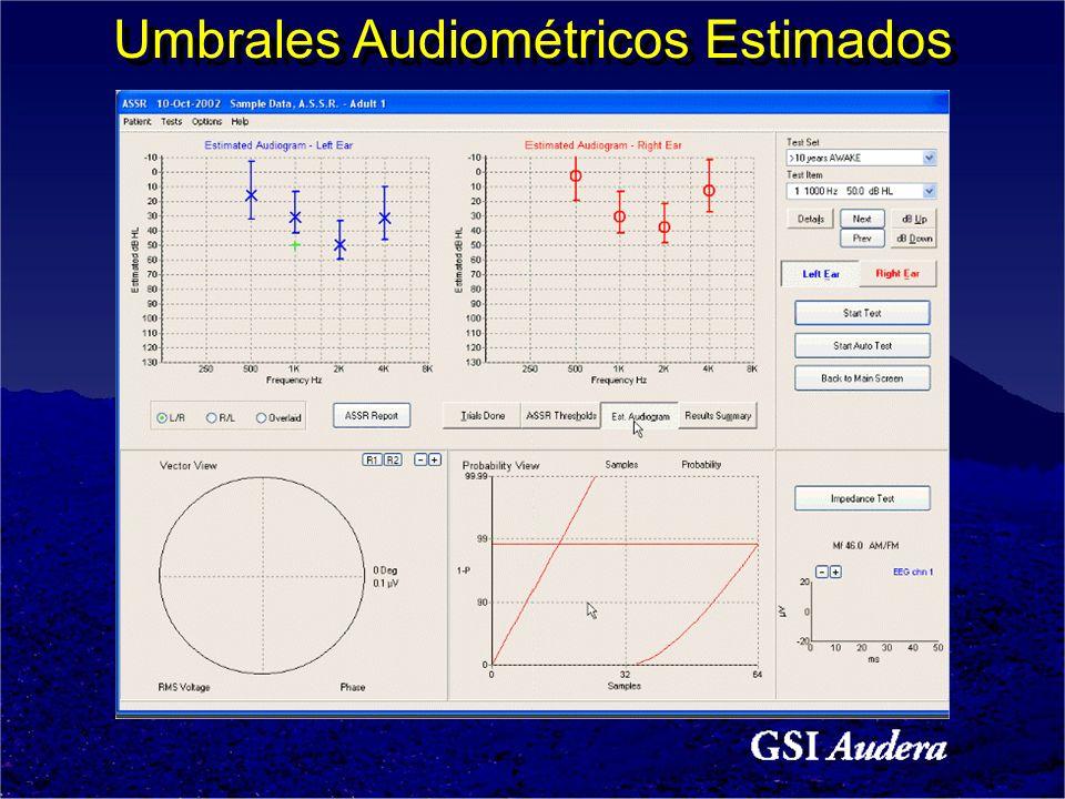 Umbrales Audiométricos Estimados