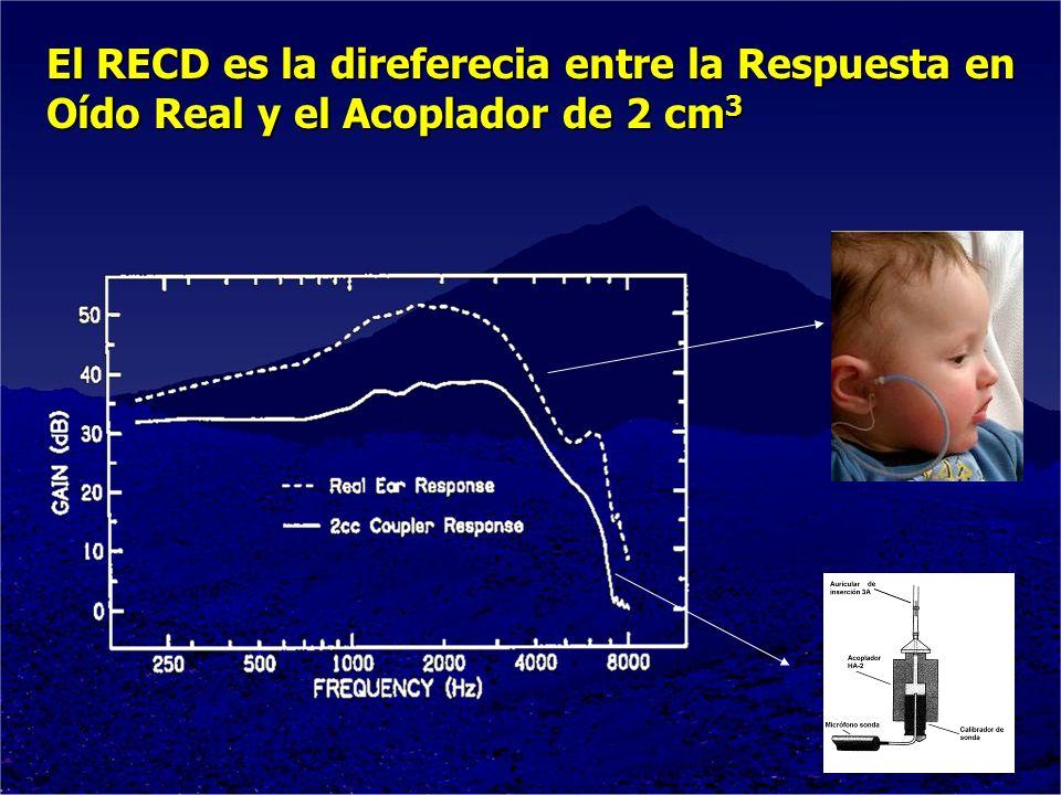 El RECD es la direferecia entre la Respuesta en Oído Real y el Acoplador de 2 cm 3