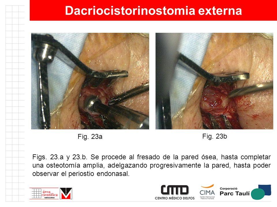 Dacriocistorinostomia externa Figs. 23.a y 23.b. Se procede al fresado de la pared ósea, hasta completar una osteotomía amplia, adelgazando progresiva