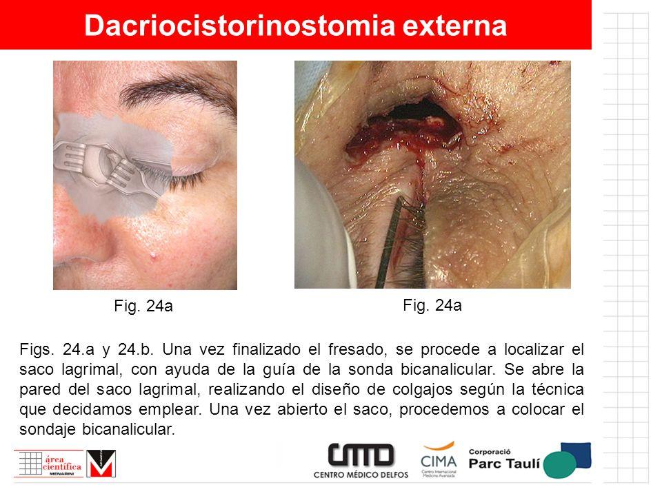 Dacriocistorinostomia externa Figs. 24.a y 24.b. Una vez finalizado el fresado, se procede a localizar el saco lagrimal, con ayuda de la guía de la so