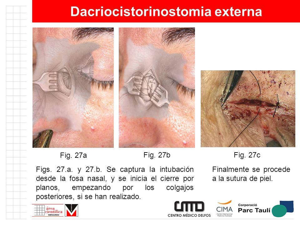 Dacriocistorinostomia externa Figs. 27.a. y 27.b. Se captura la intubación desde la fosa nasal, y se inicia el cierre por planos, empezando por los co