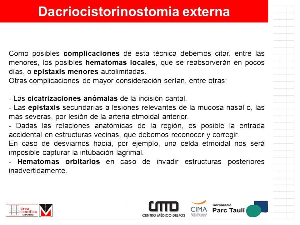 Dacriocistorinostomia externa Como posibles complicaciones de esta técnica debemos citar, entre las menores, los posibles hematomas locales, que se re