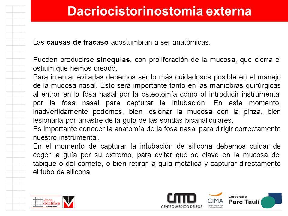 Dacriocistorinostomia externa Las causas de fracaso acostumbran a ser anatómicas. Pueden producirse sinequias, con proliferación de la mucosa, que cie