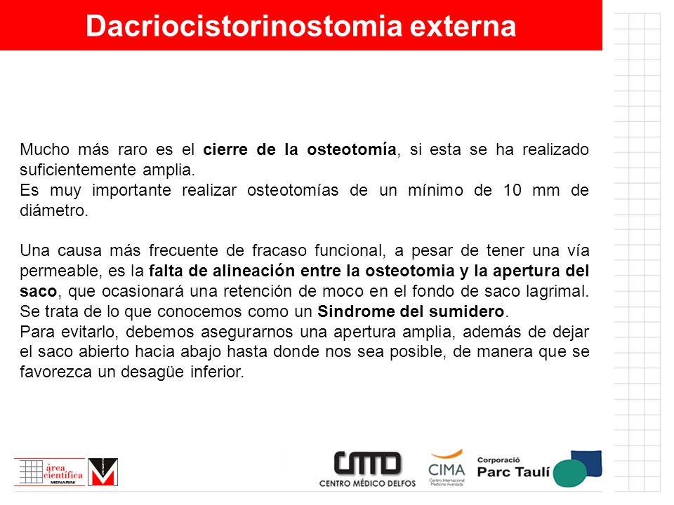 Dacriocistorinostomia externa Mucho más raro es el cierre de la osteotomía, si esta se ha realizado suficientemente amplia. Es muy importante realizar