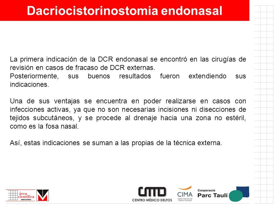 Dacriocistorinostomia endonasal La primera indicación de la DCR endonasal se encontró en las cirugías de revisión en casos de fracaso de DCR externas.