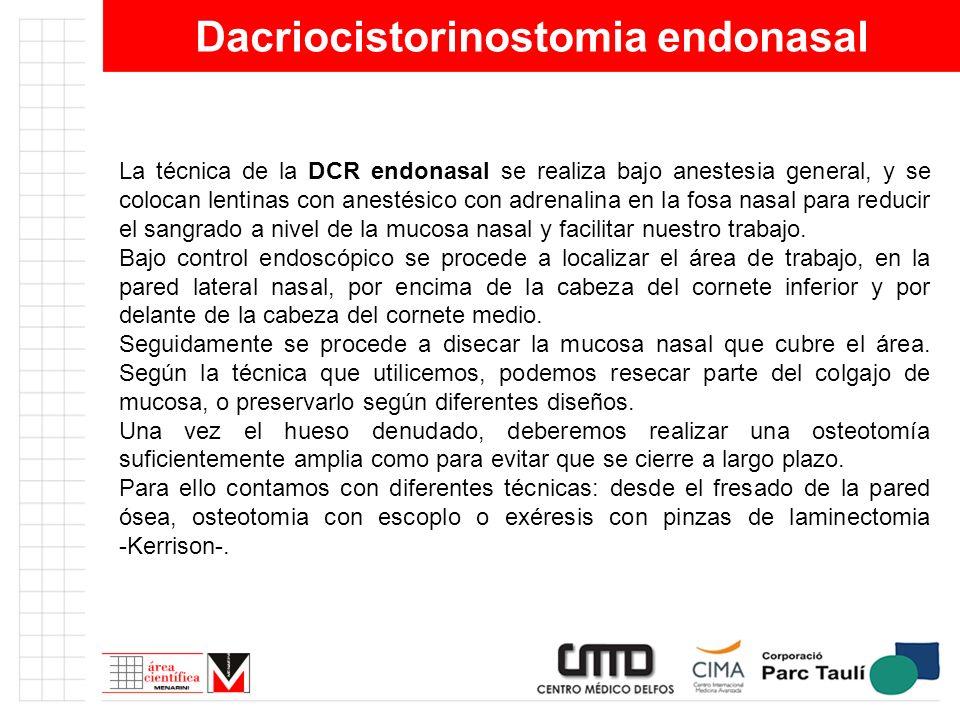 Dacriocistorinostomia endonasal La técnica de la DCR endonasal se realiza bajo anestesia general, y se colocan lentinas con anestésico con adrenalina