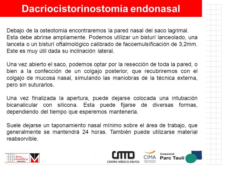 Dacriocistorinostomia endonasal Debajo de la osteotomia encontraremos la pared nasal del saco lagrimal. Esta debe abrirse ampliamente. Podemos utiliza