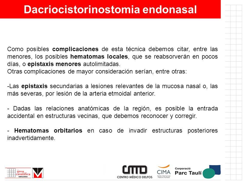 Dacriocistorinostomia endonasal Como posibles complicaciones de esta técnica debemos citar, entre las menores, los posibles hematomas locales, que se