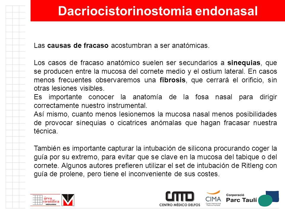 Dacriocistorinostomia endonasal Las causas de fracaso acostumbran a ser anatómicas. Los casos de fracaso anatómico suelen ser secundarios a sinequias,