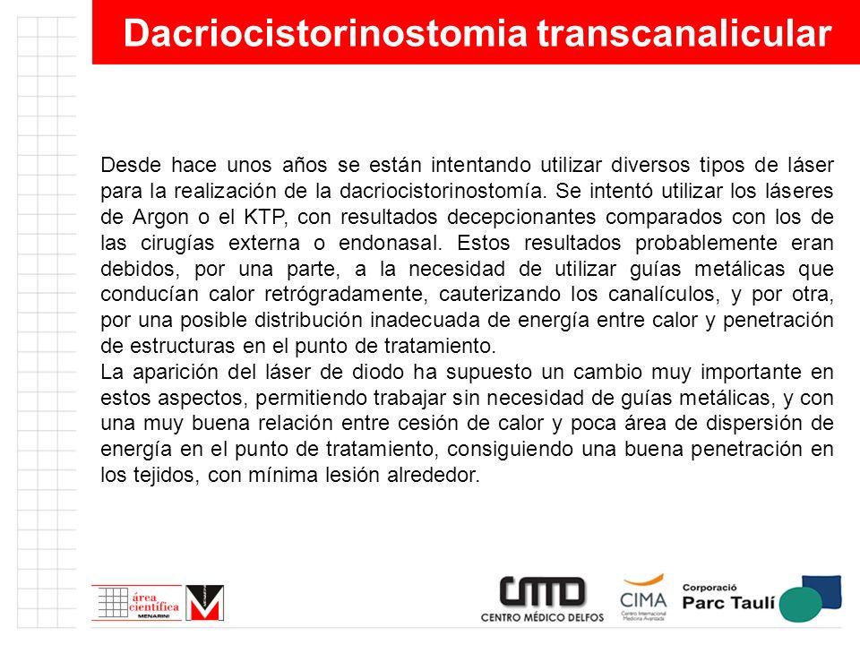 Dacriocistorinostomia transcanalicular Desde hace unos años se están intentando utilizar diversos tipos de láser para la realización de la dacriocisto