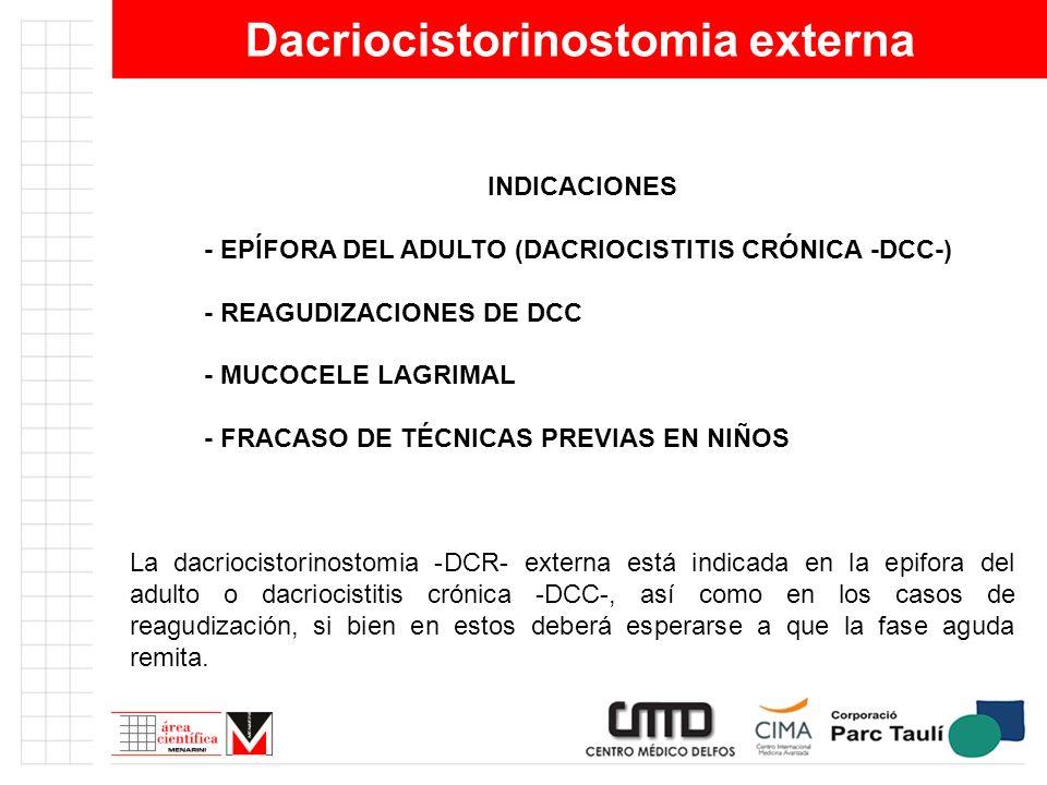 Dacriocistorinostomia externa INDICACIONES - EPÍFORA DEL ADULTO (DACRIOCISTITIS CRÓNICA -DCC-) - REAGUDIZACIONES DE DCC - MUCOCELE LAGRIMAL - FRACASO