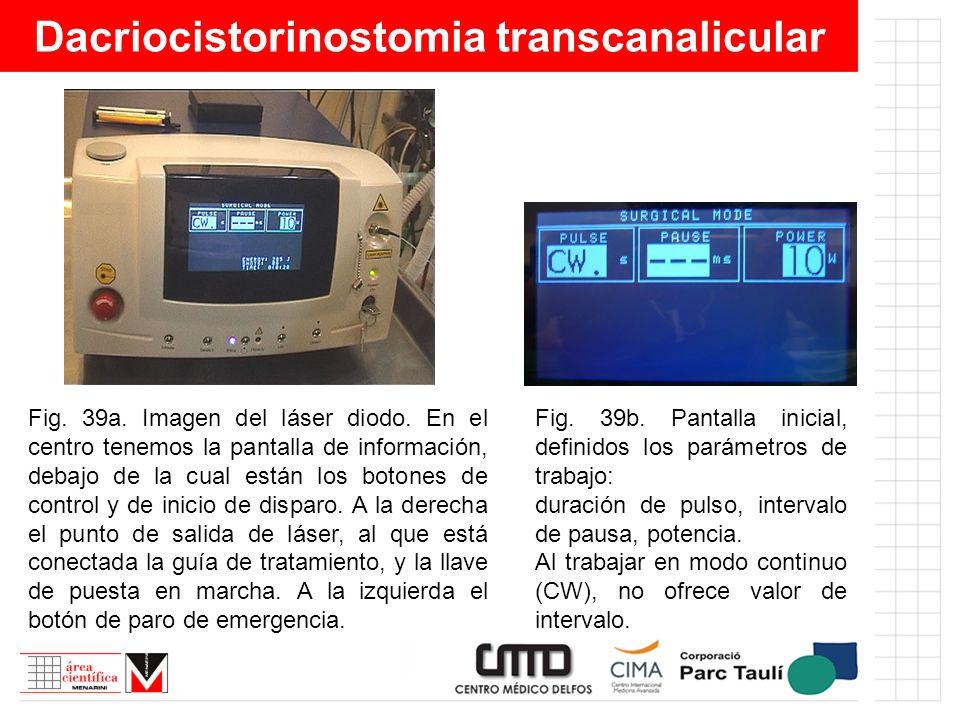 Dacriocistorinostomia transcanalicular Fig. 39a. Imagen del láser diodo. En el centro tenemos la pantalla de información, debajo de la cual están los
