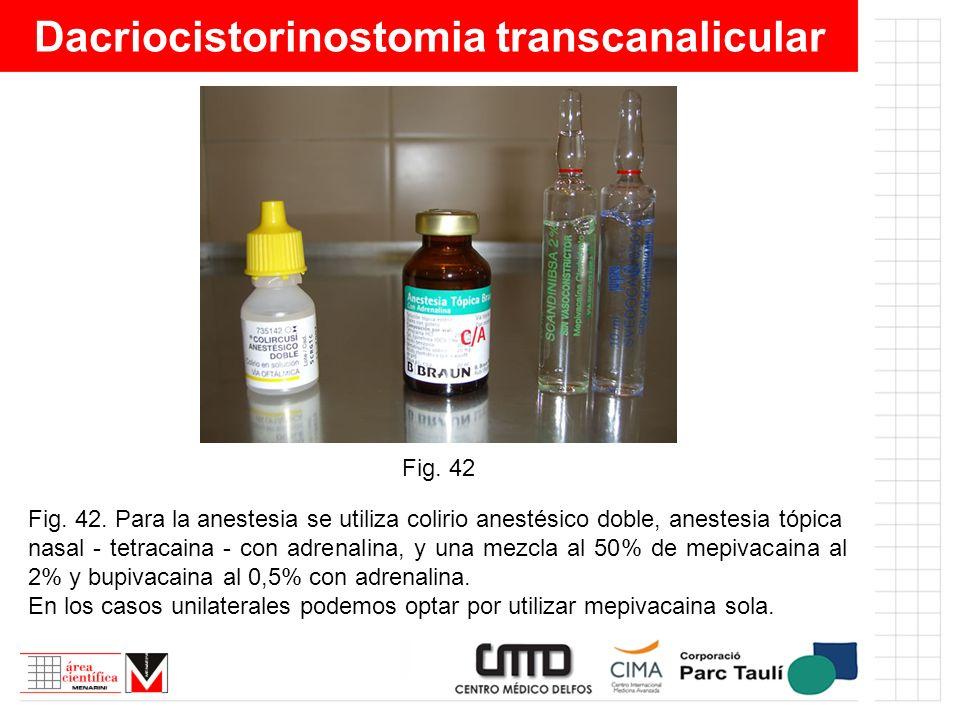 Dacriocistorinostomia transcanalicular Fig. 42. Para la anestesia se utiliza colirio anestésico doble, anestesia tópica nasal - tetracaina - con adren