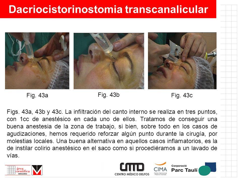 Dacriocistorinostomia transcanalicular Figs. 43a, 43b y 43c. La infiltración del canto interno se realiza en tres puntos, con 1cc de anestésico en cad