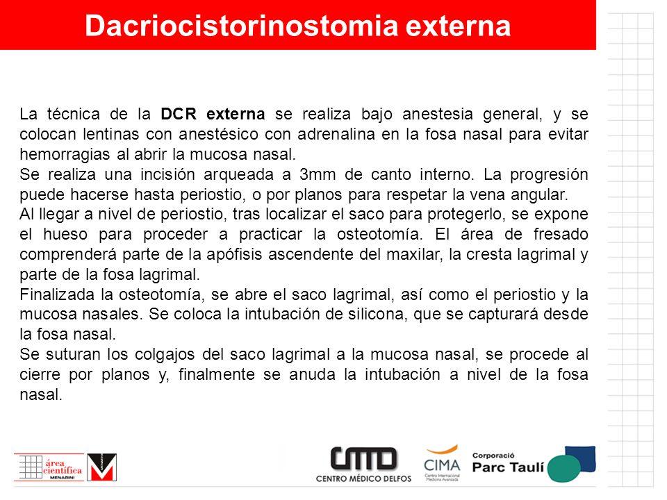Dacriocistorinostomia externa La técnica de la DCR externa se realiza bajo anestesia general, y se colocan lentinas con anestésico con adrenalina en l
