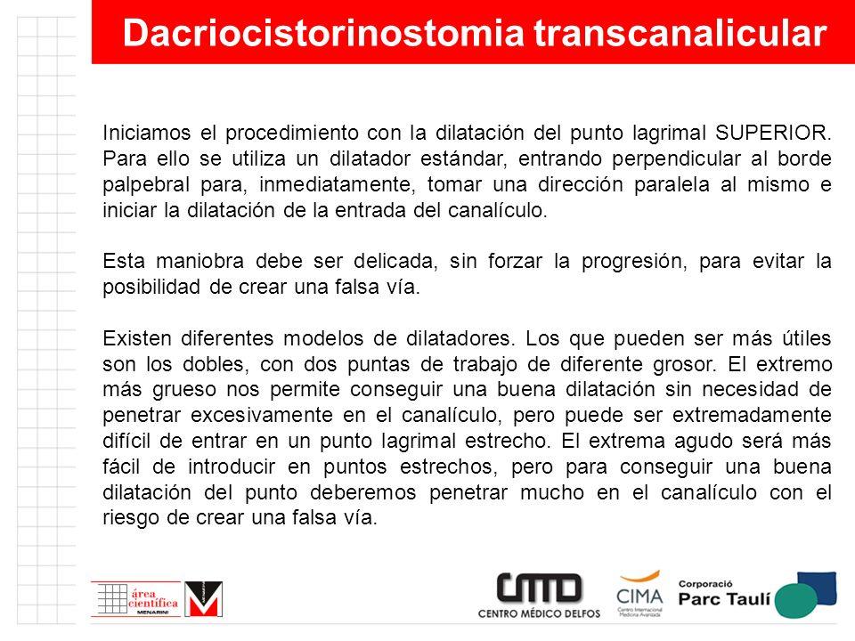 Dacriocistorinostomia transcanalicular Iniciamos el procedimiento con la dilatación del punto lagrimal SUPERIOR. Para ello se utiliza un dilatador est