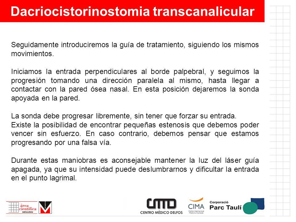 Dacriocistorinostomia transcanalicular Seguidamente introduciremos la guía de tratamiento, siguiendo los mismos movimientos. Iniciamos la entrada perp