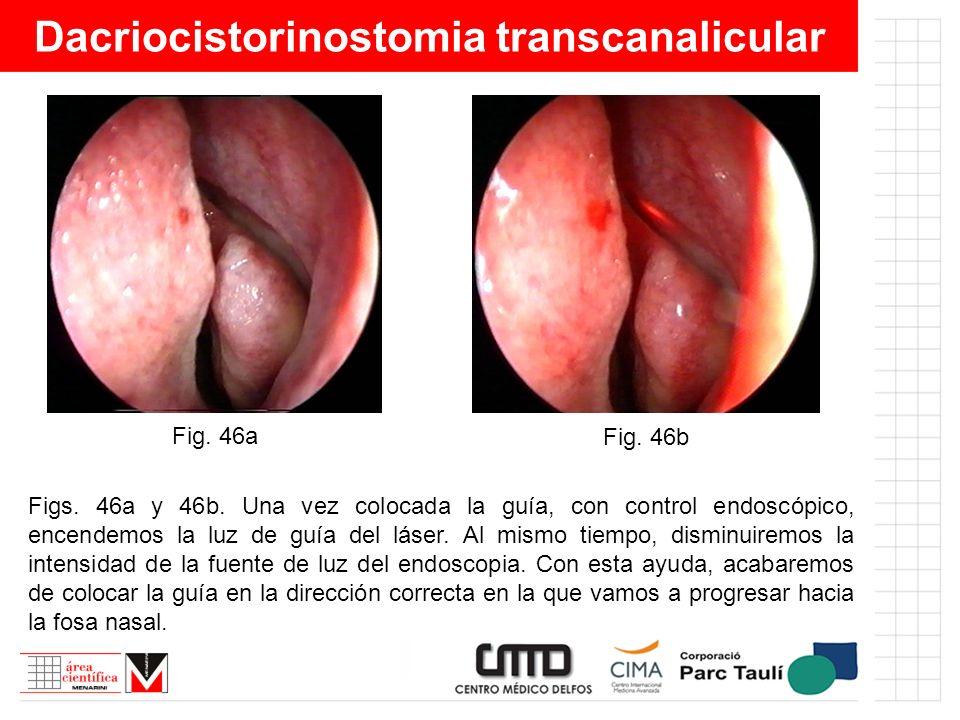 Dacriocistorinostomia transcanalicular Figs. 46a y 46b. Una vez colocada la guía, con control endoscópico, encendemos la luz de guía del láser. Al mis