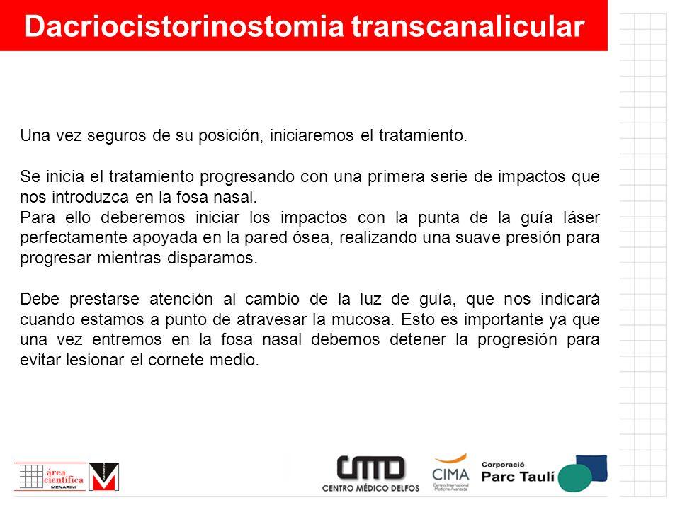 Dacriocistorinostomia transcanalicular Una vez seguros de su posición, iniciaremos el tratamiento. Se inicia el tratamiento progresando con una primer