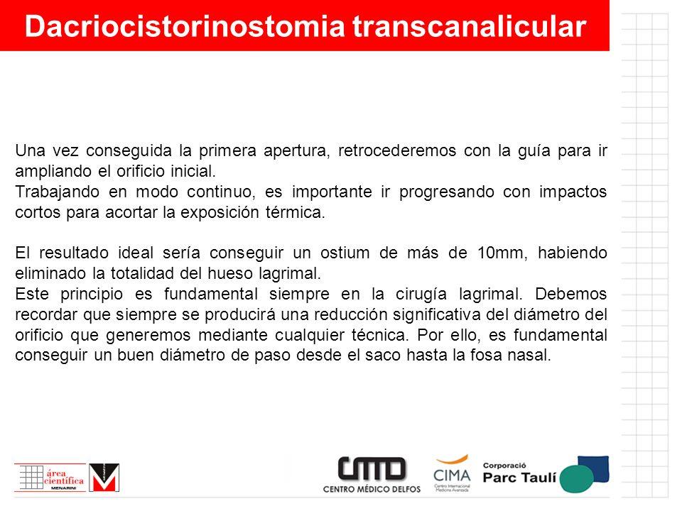 Dacriocistorinostomia transcanalicular Una vez conseguida la primera apertura, retrocederemos con la guía para ir ampliando el orificio inicial. Traba