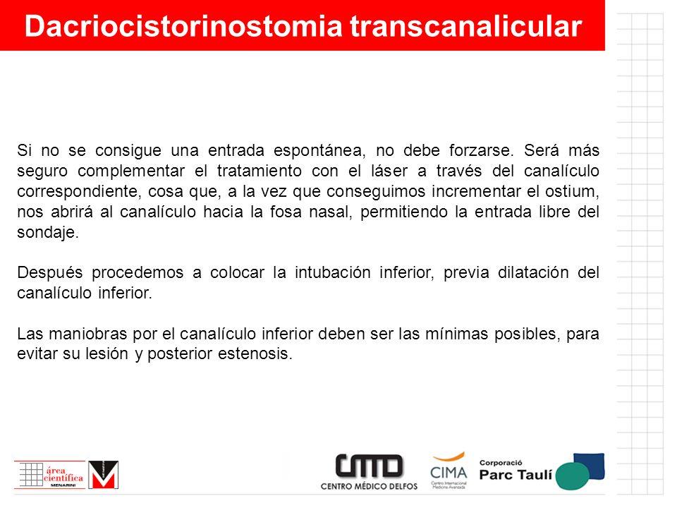 Dacriocistorinostomia transcanalicular Si no se consigue una entrada espontánea, no debe forzarse. Será más seguro complementar el tratamiento con el