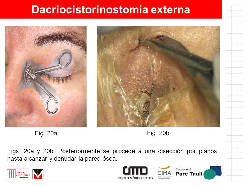 Dacriocistorinostomia externa Figs. 20a y 20b. Posteriormente se procede a una disección por planos, hasta alcanzar y denudar la pared ósea. Fig. 20a
