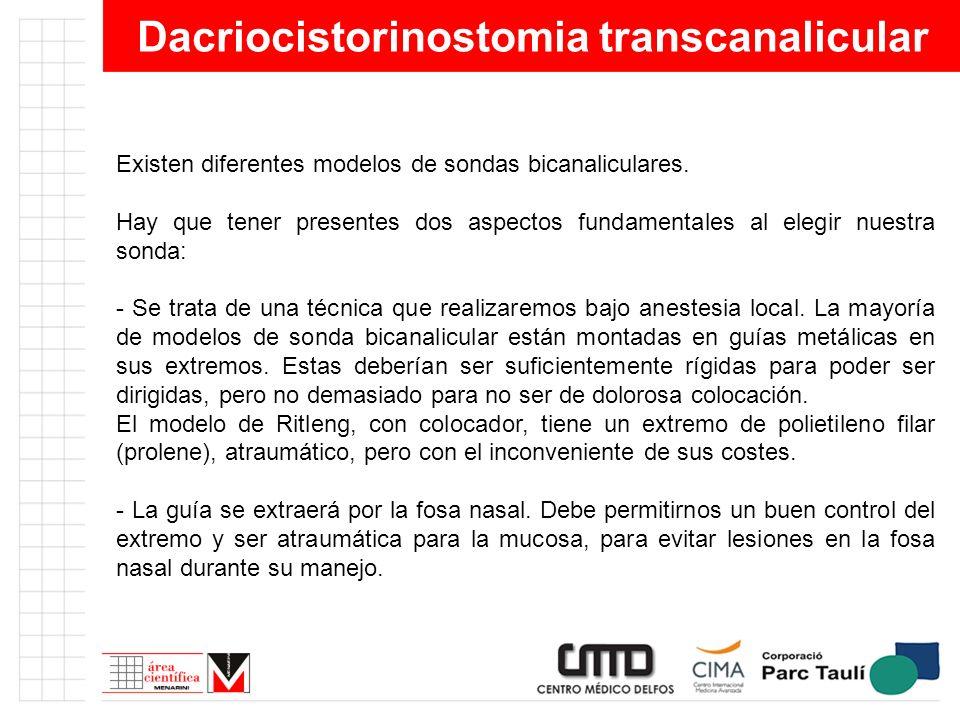 Dacriocistorinostomia transcanalicular Existen diferentes modelos de sondas bicanaliculares. Hay que tener presentes dos aspectos fundamentales al ele
