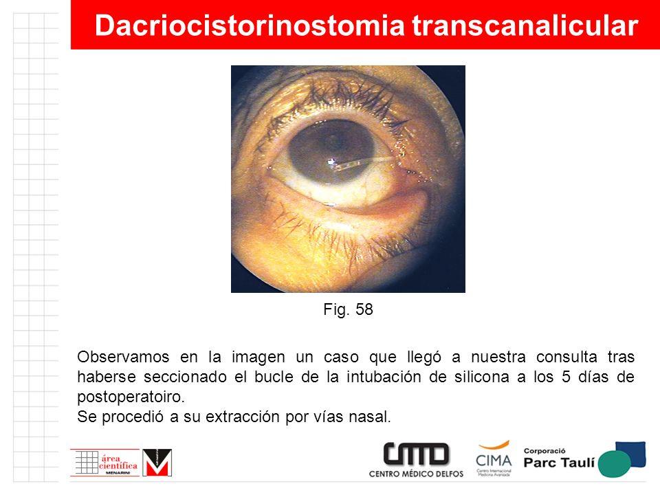 Dacriocistorinostomia transcanalicular Observamos en la imagen un caso que llegó a nuestra consulta tras haberse seccionado el bucle de la intubación