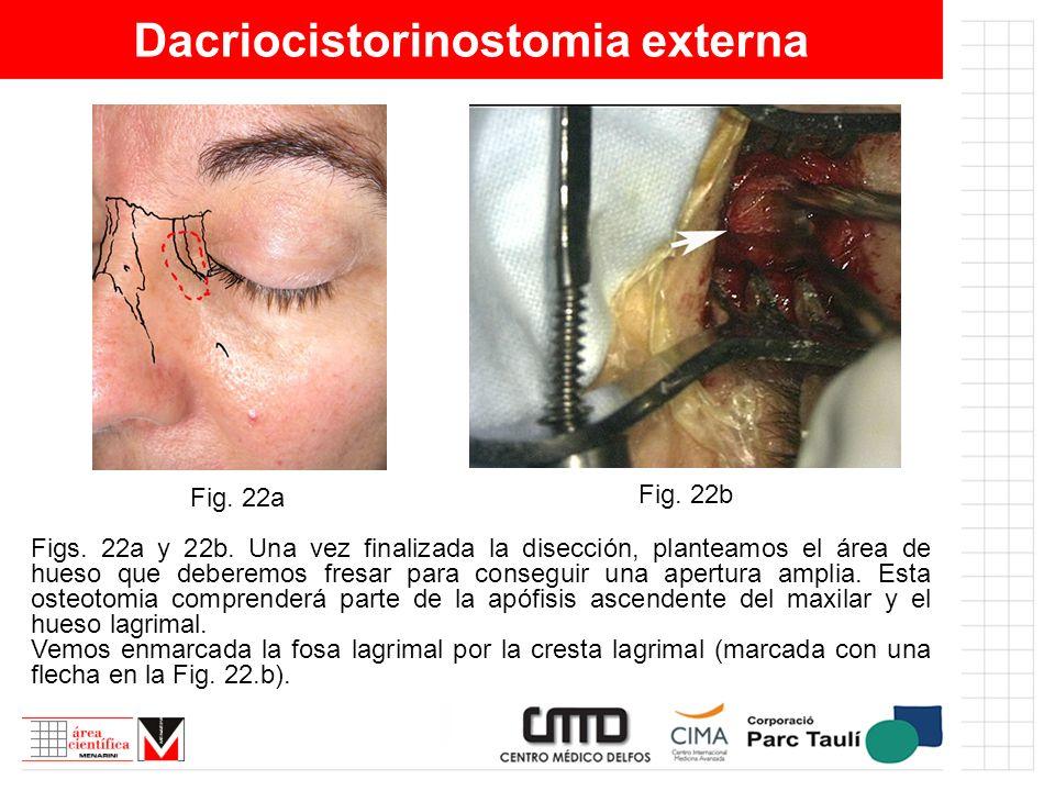 Dacriocistorinostomia externa Figs. 22a y 22b. Una vez finalizada la disección, planteamos el área de hueso que deberemos fresar para conseguir una ap