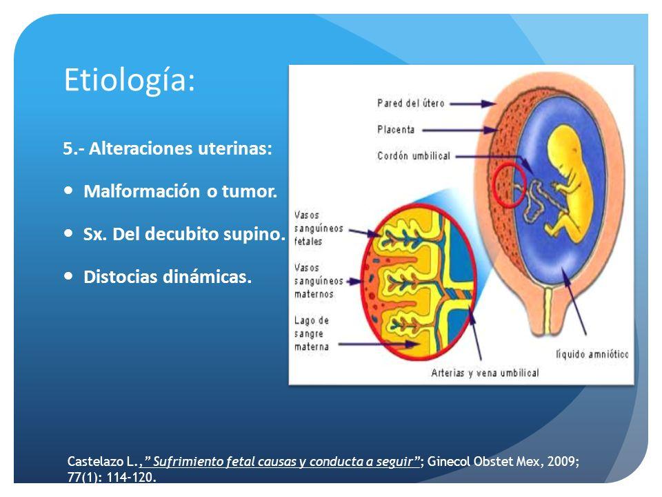 Etiología: 5.- Alteraciones uterinas: Malformación o tumor. Sx. Del decubito supino. Distocias dinámicas. Castelazo L., Sufrimiento fetal causas y con