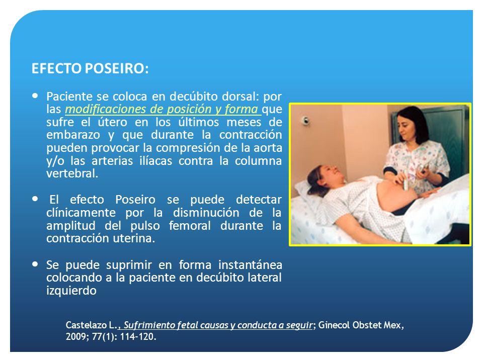 EFECTO POSEIRO: Paciente se coloca en decúbito dorsal: por las modificaciones de posición y forma que sufre el útero en los últimos meses de embarazo y que durante la contracción pueden provocar la compresión de la aorta y/o las arterias ilíacas contra la columna vertebral.