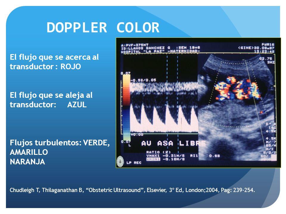 El flujo que se acerca al transductor : ROJO El flujo que se aleja al transductor: AZUL Flujos turbulentos: VERDE, AMARILLO NARANJA DOPPLER COLOR Chudleigh T, Thilaganathan B, Obstetric Ultrasound, Elsevier, 3º Ed, London;2004, Pag: 239-254.