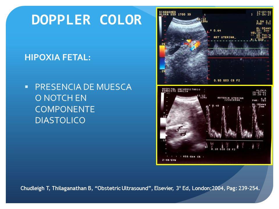 DOPPLER COLOR HIPOXIA FETAL: PRESENCIA DE MUESCA O NOTCH EN COMPONENTE DIASTOLICO Chudleigh T, Thilaganathan B, Obstetric Ultrasound, Elsevier, 3º Ed,