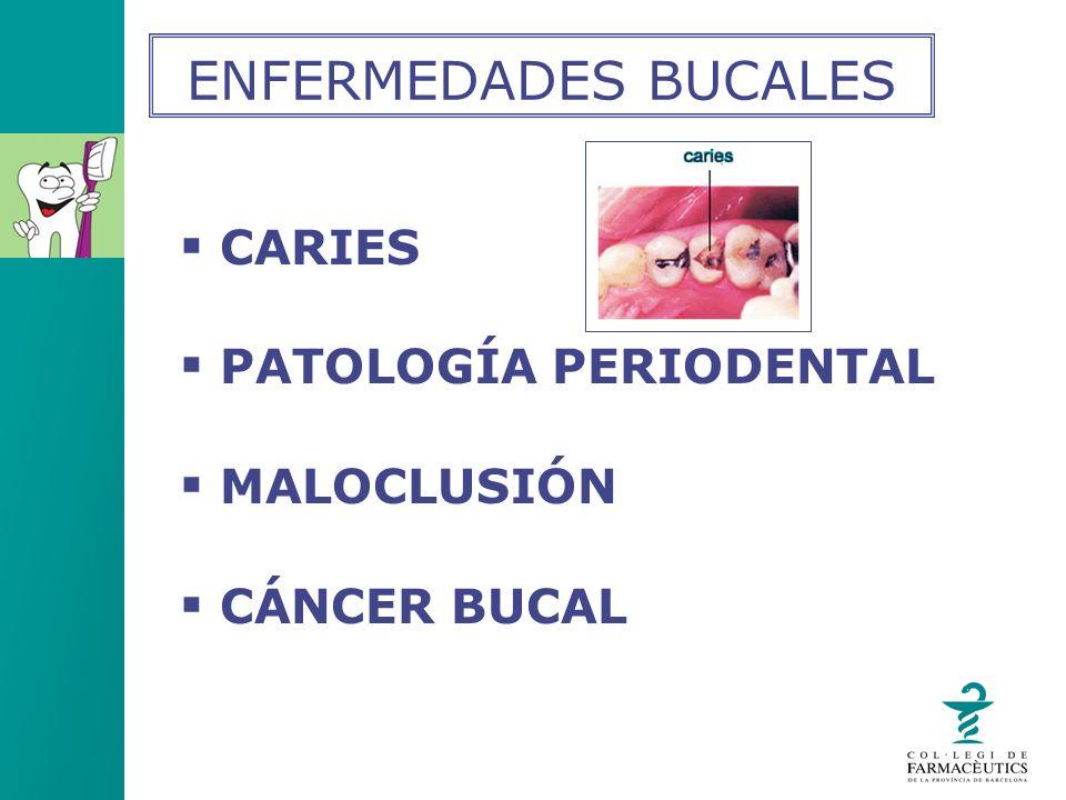 CARIES PATOLOGÍA PERIODENTAL MALOCLUSIÓN CÁNCER BUCAL ENFERMEDADES BUCALES