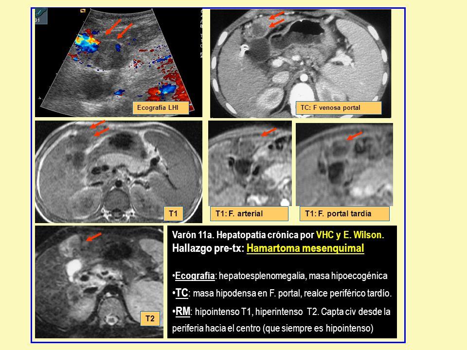 Varón 11a. Hepatopatía crónica por VHC y E. Wilson. Hallazgo pre-tx: Hamartoma mesenquimal Ecografía : hepatoesplenomegalia, masa hipoecogénica TC : m