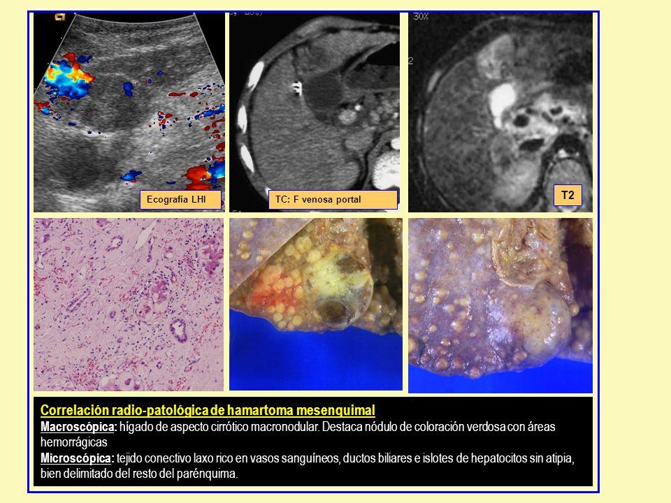 Ecografía LHITC: F venosa portal T2 Correlación radio-patológica de hamartoma mesenquimal Macroscópica: hígado de aspecto cirrótico macronodular. Dest